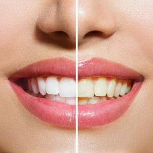 Teethwhitening-Before-and-After-